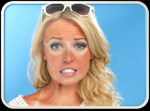 sunburnedfaceuse